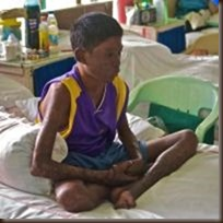 Filipino boy with leprosy by moyerphotos on flickr 200x200 75pc